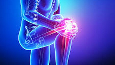 Orthopedic Surgery and Physical Therapy in Mexico